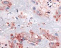 Immunohistochemistry staining of Retinoic Acid receptor beta in intermediate trophoblasts tissue using Retinoic Acid receptor beta Antibody.