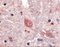 Immunohistochemistry staining of GPR88 in brain, caudate tissue using GPR88 Antibody.