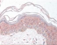 Immunohistochemistry staining of MDH1 in skin using MDH1 Antibody.