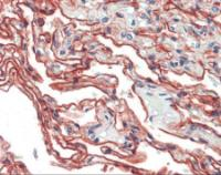 Human lung tissue stained with S100A10 Antibody, alkaline phosphatase-streptavidin and chromogen.