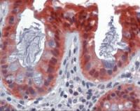 Human colon tissue stained with CASP7 Antibody, alkaline phosphatase-streptavidin and chromogen.