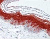 Immunohistochemistry staining of S100A7 in skin tissue using S100A7 monoclonal Antibody.