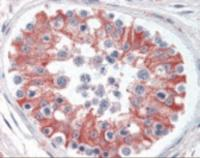 Immunohistochemistry staining of SMAD6 in testis tissue using SMAD6 Antibody.