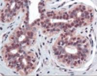 Immunohistochemistry staining of TNFRSF10B in breast tissue using TNFRSF10B Antibody.