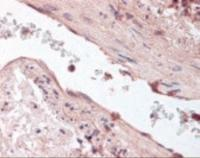 Immunohistochemistry staining of Angiopoietin-1 in lung, vessel tissue using Angiopoietin-1 Antibody.
