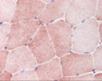 Immunohistochemistry staining of MAP4K4 in skeletal muscle tissue using MAP4K4 Antibody.