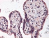 Immunohistochemistry staining of IKBKB in placenta tissue using IKBKB Antibody.