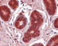 Immunohistochemistry staining of NFKBIA in breast using NFKBIA Antibody.