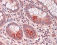 Immunohistochemistry staining of MMP17 in small intestine tissue using MMP17 Antibody.