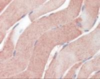 Immunohistochemistry staining of ABCA1 in skeletal muscle tissue using ABCA1 Monoclonal Antibody.