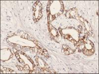 Immunohistochemistry staining of Keratin 7 in human pancreatic tissue (4 microns) tissue using Keratin 7 Antibody.