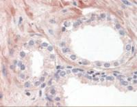 Immunohistochemistry staining of OR51E1 in human prostate tissue using OR51E1 Antibody.