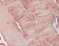 Immunohistochemistry of human skeletal muscle tissue stained using Aurora-A Monoclonal Antibody.