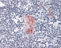 Immunohistochemistry of human thymus tissue stained using CD1D Monoclonal Antibody.
