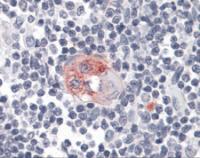 Immunohistochemistry of human thymus tissue stained using FCER2 Monoclonal Antibody.