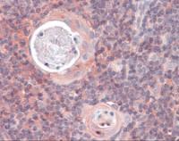 Immunohistochemistry of human thymus tissue stained using KARS Monoclonal Antibody.