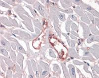 Immunohistochemistry of human heart capillaries stained using Integrin Alpha 5 Monoclonal Antibody.