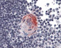 Immunohistochemistry of human thymus tissue stained using AKT2 Monoclonal Antibody.