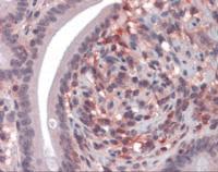 Immunohistochemistry of human small intestine tissue stained using CD69 Monoclonal Antibody.