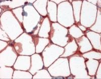 Adipocytes in human colon tissue stained with VCAM1 Monoclonal Antibody.