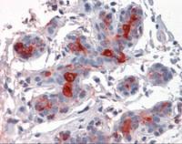 Immunohistochemistry of human breast tissue stained using MUC1 Monoclonal Antibody.