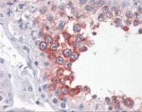 Immunohistochemistry of human testis tissue stained using ART3 Monoclonal Antibody.