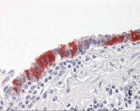 Immunohistochemistry of human lung, respiratory epithelium stained using ARVCF Monoclonal Antibody.