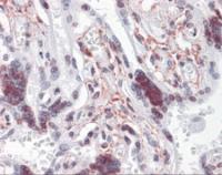 Immunohistochemistry of human placenta tissue stained using ATR Monoclonal Antibody.