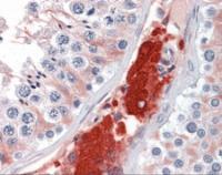 Immunohistochemistry of human testis tissue stained using CDC123 Monoclonal Antibody.