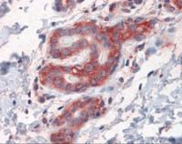 Immunohistochemistry of human breast tissue stained using G3BP Monoclonal Antibody.