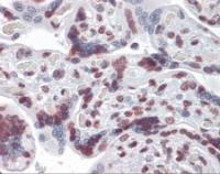 Immunohistochemistry of human placenta tissue stained using RBM5 Monoclonal Antibody.