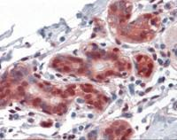 Immunohistochemistry of human breast tissue stained using YAP1 Monoclonal Antibody.
