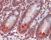 Immunohistochemistry of human small intestine tissue stained using SPSB2 Monoclonal Antibody.