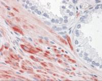 Immunohistochemistry of human prostate tissue stained using ADAMTS17 Monoclonal Antibody.