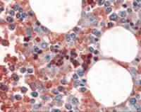 Immunohistochemistry of human bone marrow stained using Hemoglobin Monoclonal Antibody.