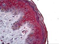 Immunohistochemistry of human skin tissue stained using KRT16 Monoclonal Antibody.