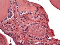 Immunohistochemistry of human thyroid tissue stained using Thyroglobulin Monoclonal Antibody.
