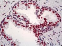 Immunohistochemistry of human prostate tissue stained using TRIM28 Monoclonal Antibody.