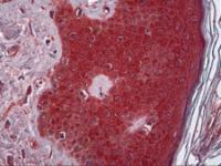Immunohistochemistry of human skin tissue stained using TNF Monoclonal Antibody.
