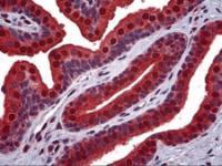 Immunohistochemistry of human prostate tissue stained using VCP Monoclonal Antibody.
