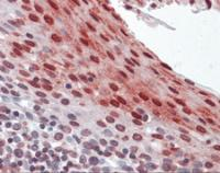 Anti-CSTB Mouse Monoclonal Antibody