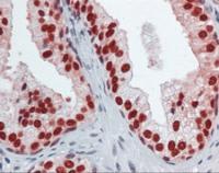 Immunohistochemistry of human prostate tissue stained using FOXA1 Monoclonal Antibody.