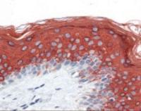 Human skin tissue stained with Cytoke Antibody at 10 ug/mL followed by biotinylated anti-mouse IgG secondary antibody, alkaline phosphatase-streptavidin and chromogen.
