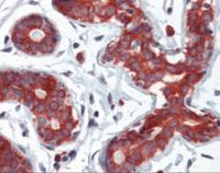 Human breast tissue stained with TPD52L1 Antibody at 5 ug/mL followed by biotinylated anti-mouse IgG secondary antibody, alkaline phosphatase-streptavidin and chromogen.