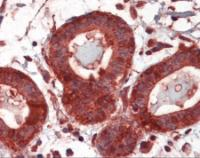 Human breast tissue stained with GRP94 Antibody at 5 ug/mL followed by biotinylated anti-mouse IgG secondary antibody, alkaline phosphatase-streptavidin and chromogen.