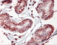 Human breast tissue stained with CD44 Antibody at 5 ug/mL followed by biotinylated anti-mouse IgG secondary antibody, alkaline phosphatase-streptavidin and chromogen.