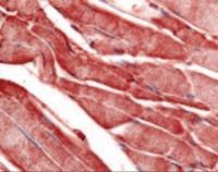Immunohistochemistry staining of PYGM in skeletal muscle tissue using PYGM Antibody.