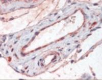 Immunohistochemistry staining of ADAMTS1 in testis, vessels tissue using ADAMTS1 Antibody.