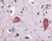 Immunohistochemistry staining of HTR5A in brain cortex tissue using HTR5A Antibody.