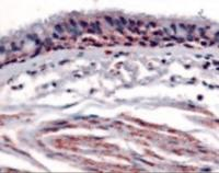 Immunohistochemistry staining of Ah receptor in respiratory epithelium and bronchial smooth muscle tissue using Ah receptor Antibody.